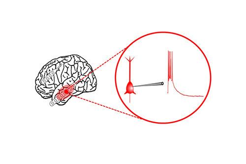 Epilepsie – okna mozku dokořán